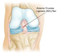 What happens after ACL Reconstruction - ACL Drawing